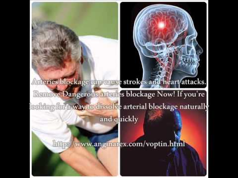Angina Attack And Blood Pressure