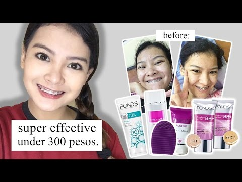 How To Get Rid of Acne (Under 300 Pesos) | Cheap | Philippines | ItsAliahShaira