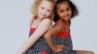 10 Unusual Twins You Won't Believe Exist!