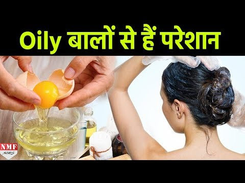 Learn How To Get Rid Of Oily Hair & Scalp Naturally