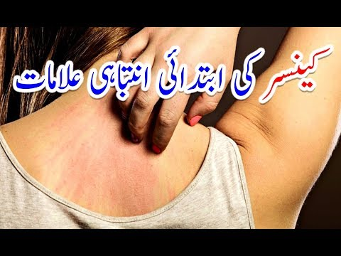 12 Early Warning Signs of Cancer Most People Ignore# Cancer ki Alamat in Urdu   کینسر کی علامات