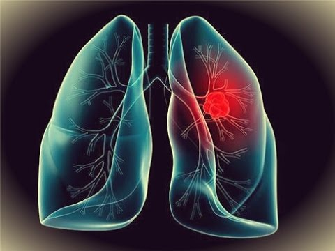 Lung cancer caused by Asbestos :How to Prevent ASBESTOS LUNG CANCER