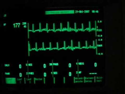 exercise ECG - maximum heart rate 180 beats per minute