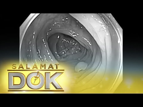 Salamat Dok: Diagnosis and medications for colon cancer