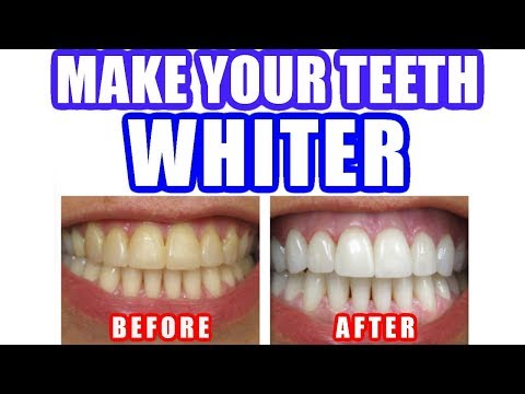 How to Whiten Teeth - Best Way to Make Your Teeth Whiter Naturally at Home