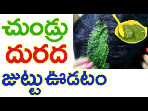 🌿 How to Get Rid of Dandruff 🌿| Stop Itching | Stop Hairfall | telugu
