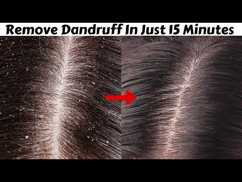 Permanently Remove DANDRUFF In Just 15 Minutes | Magical Home Remedy To Remove Dandruff At Home