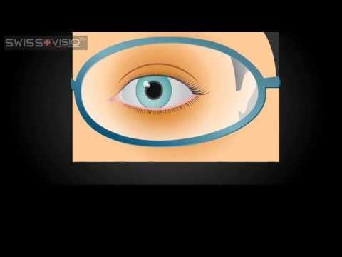 Spherical vs Aspherical Glasses Lenses
