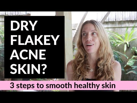 3 Steps To Get Rid Of Dry Flakey Acne Skin