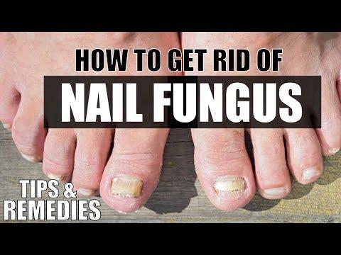 How To Treat Toenail & Nail Fungus | Tips & Remedies by Guru Mann