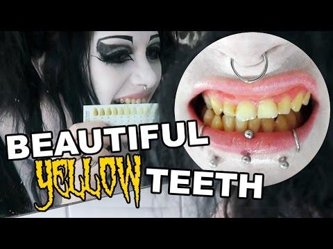 My Yellow Teeth! Whitening Them? | Black Friday