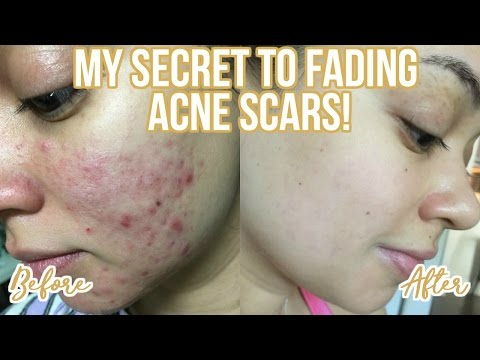 HOW TO GET RID OF ACNE SCARS | MY SKINCARE ROUTINE