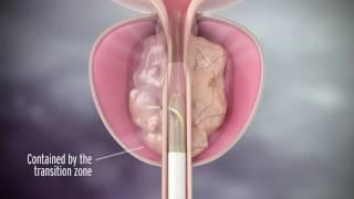 Rezum Treatment for Enlarged Prostate with Dr. Richard Levin