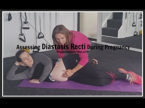 HOW TO TEST FOR DIASTASIS RECTI DURING PREGNANCY