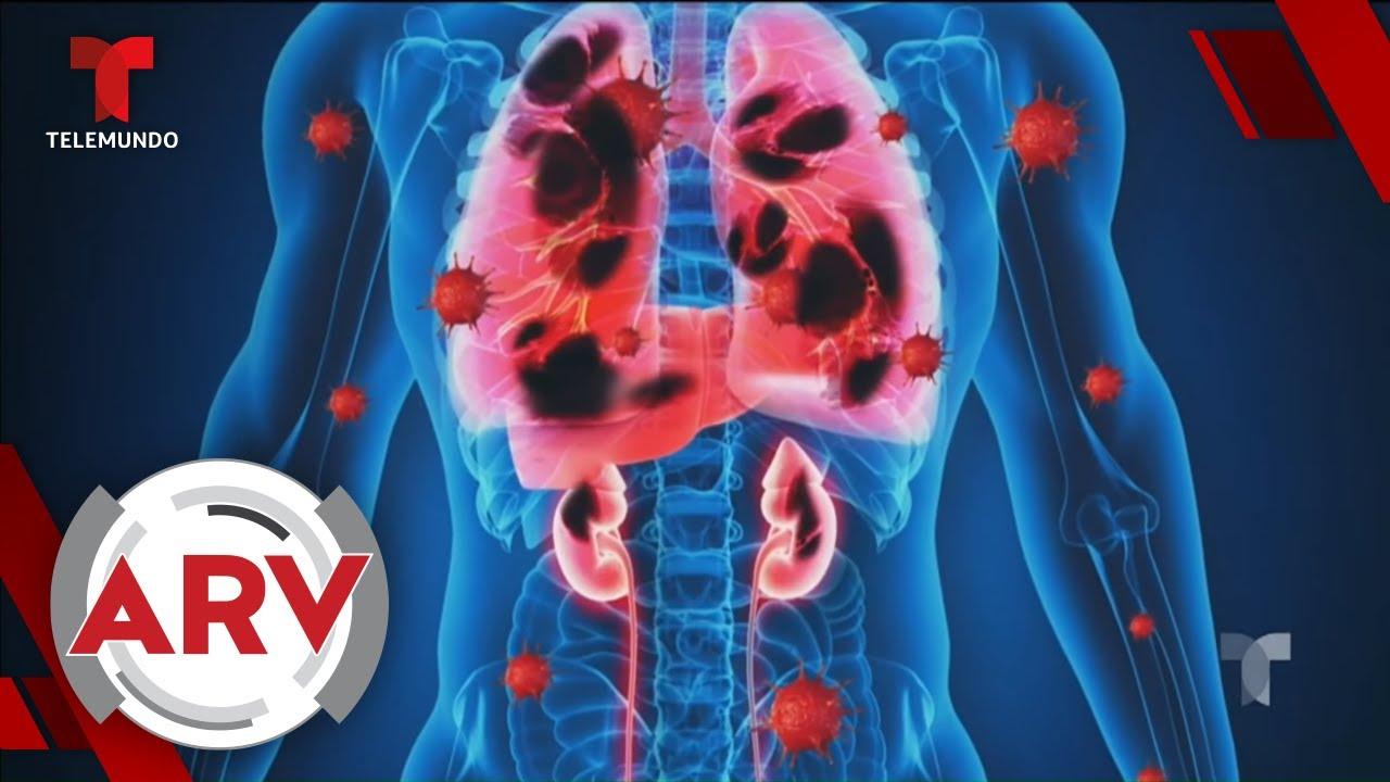 Coronavirus: El virus cuenta con 3 fases y produce daños en todos los órganos   Telemundo