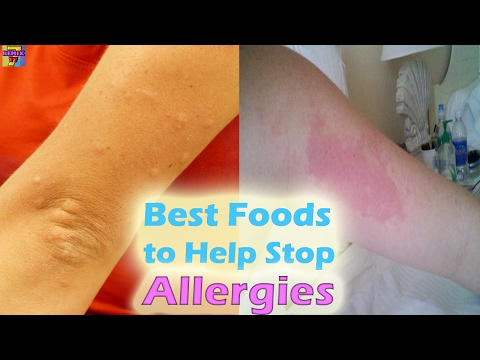 Top 10 Foods To Fight Allergy Naturally | Anti-Allergic Foods