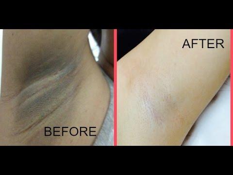 Remove Underarm Dark Patches In Just 10 Minutes
