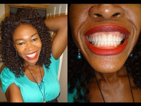 {#185} Results of 7 days Teeth Whitening ~Carbamide Peroxide~