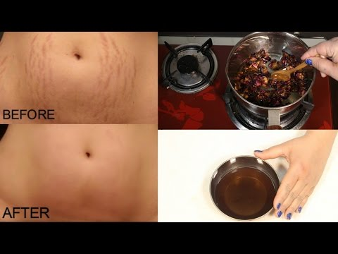 How To Remove Pregnancy Stretch Marks Works 100% - Cure Injury & Burn In 3 Days Miracle Oil