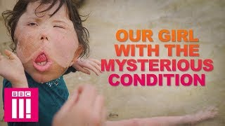 Our Girl With The Rare Condition That Doctors Have Never Seen   Living Differently