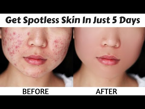 Get Crystal Clear, Spotless and Radiant Skin In Just 5 Days | Removes Acne Scars & Pimples