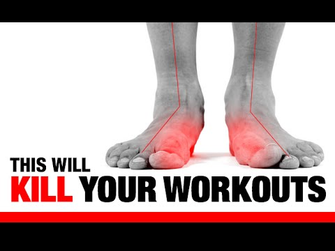 "5 Ways Flat Feet ""F"" Up Your Workouts!! (EXERCISES TO FIX THEM!)"