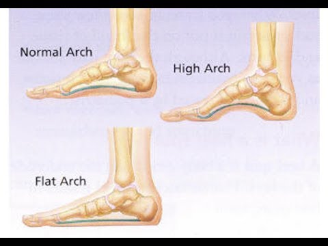 CORRECT THE ARCH OF YOUR FEET SUBLIMINAL EXTREMELY POWERFUL AND VERY FAST RESULTS