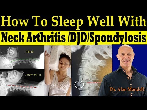 How To Sleep Well With Neck Arthritis/DJD/ Spondylosis - Dr. Alan Mandell, DC