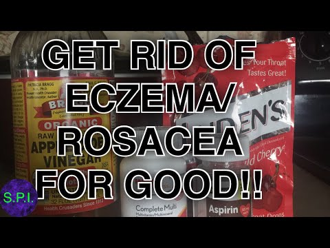 THE BEST CURE FOR ECZEMA/ROSACEA: DON'T WORRY ABOUT RED DRY SKIN EVER AGAIN!!!