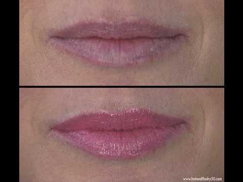 Quick Fix for Lip Wrinkles