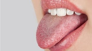Home Remedies For Dry Mouth Dry Mouth Treatment