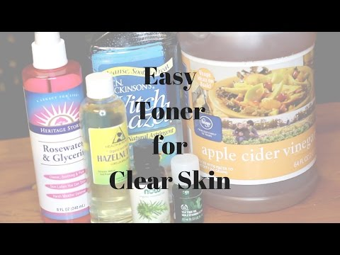 DIY Toner for flawless skin   Acne & Moisture