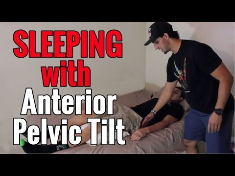 Sleeping with Anterior Pelvic Tilt