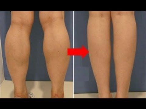 Get Slim Calves || Subliminal