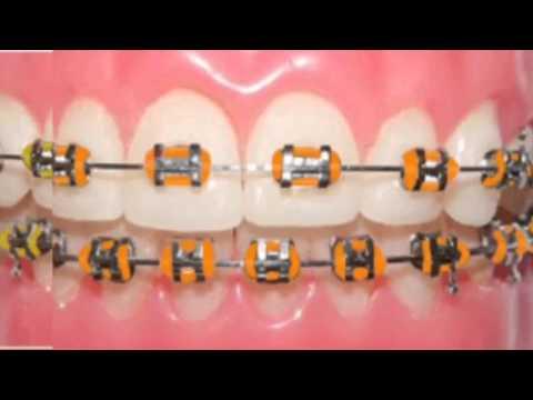 Braces Colors ideas 2!