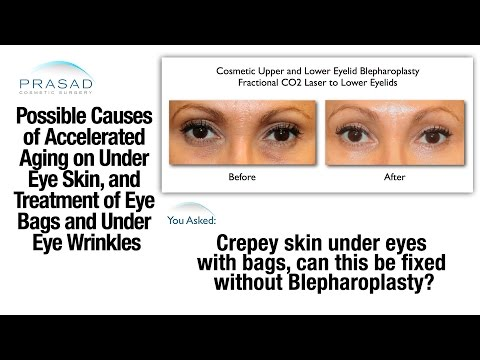 The Causes of Puffy Eye Bags and Thinned Skin Under the Eyes, and Treatments for Both