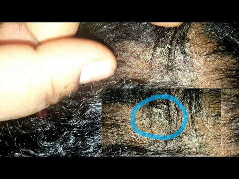 Fungus and dry scalp issues in 2yr old hair