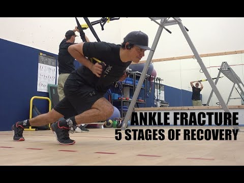 Ankle Fracture, 5 Stages of Recovery