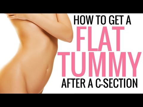 How to Tighten, Tone and Flatten your Stomach After a C-Section - Christina Carlyle