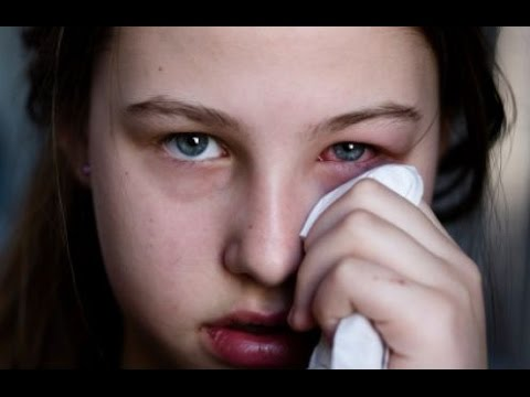 Home Remedies for Itchy Eyes Treatment