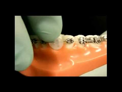 How to fix your Braces at Home Dr Roger S Lim Orthodontist Sherman Oaks Ca.