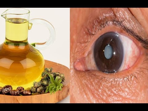 How to Use Castor Oil to Remove Cataracts and Improve Vision