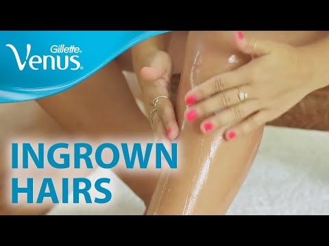Want To Avoid Ingrown Hairs? Smooth Legs 101: Hair Removal with Gillette Venus