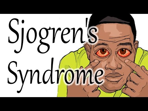 Sjögren's Syndrome | Dry Mouth and Eyes