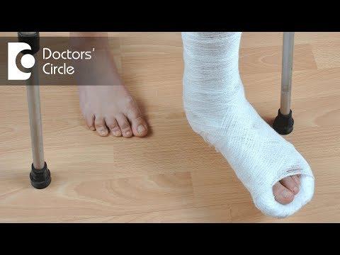 When can one start walking after Leg Fracture? - Dr. Kiran Sundara Murthy