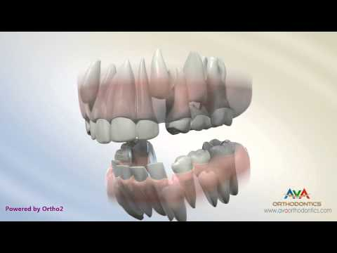 Serial Extraction - Orthodontic Treatment