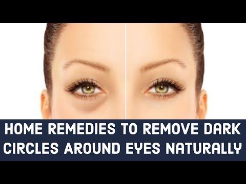 Home Remedies To Remove Dark Circles Around Eyes Naturally