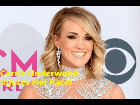 Nukem384 News: Carrie Underwood Injures Her Face!