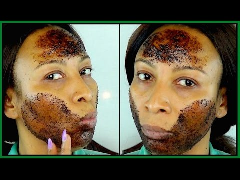 HOW TO GET RID OF ACNE IN ONE WEEK | TRANSFORM YOUR SKIN IN 7 DAYS |Khichi Beauty