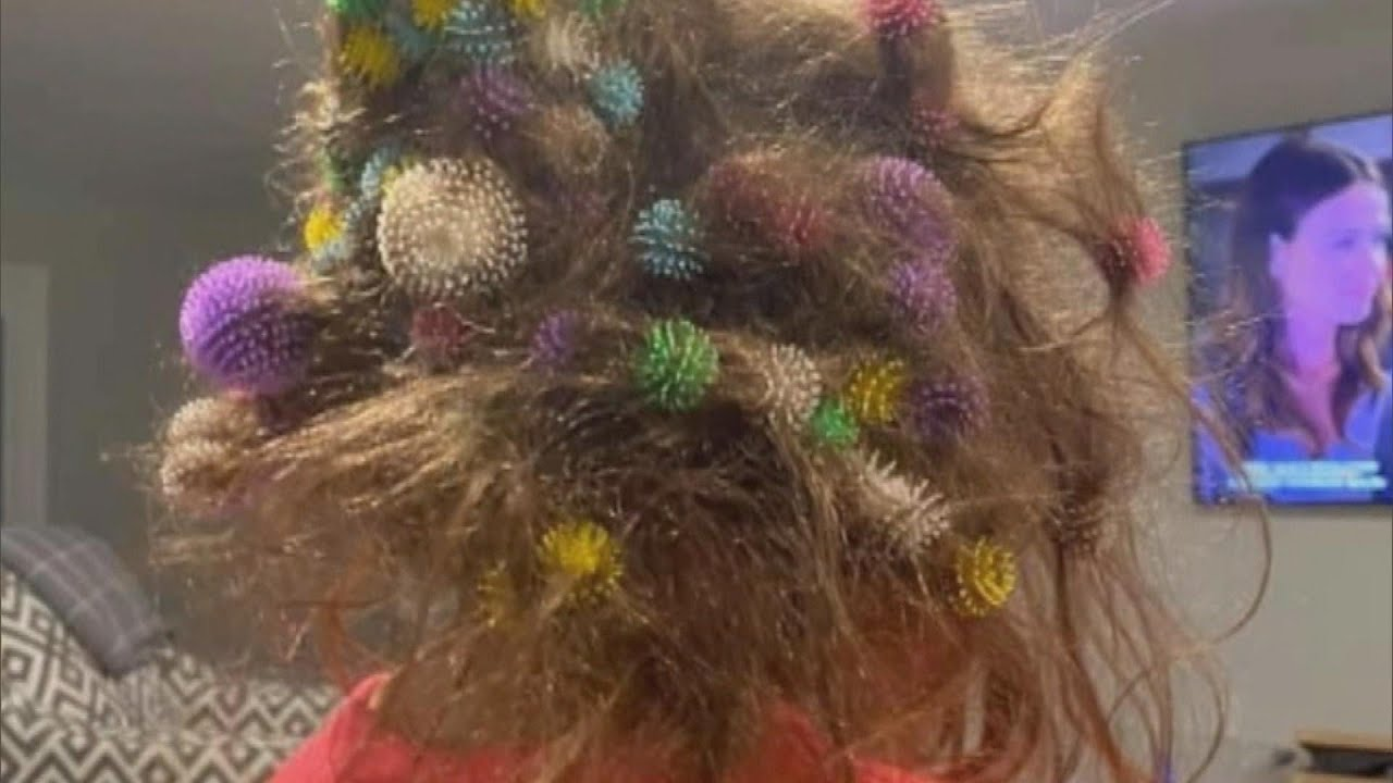6-Year-Old Gets 150 Bunchems Velcro Balls Stuck in Her Hair
